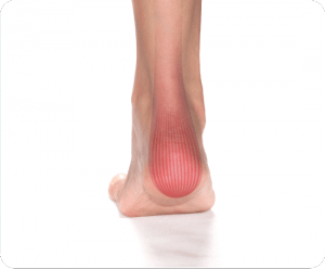 Image of Foot with Achilles Tendonitis