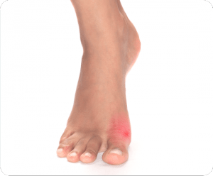 Image of Foot with Bunions