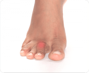 Image of Foot with Corns