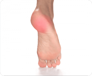 Image of Foot with Foot Injury