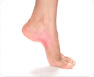 Image of Foot with Plantar Fascitis