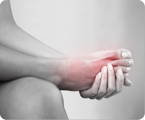 Image of Foot with Gout