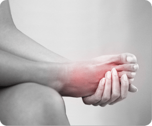 Image of  foot with Diabetic Foot