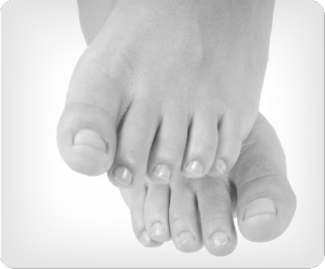 Image of Foot with Ingrown Toenails