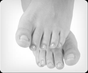 Image of Foot with Ingrown Toenails