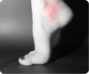 Image of Foot with Post-Tib Tendonitis